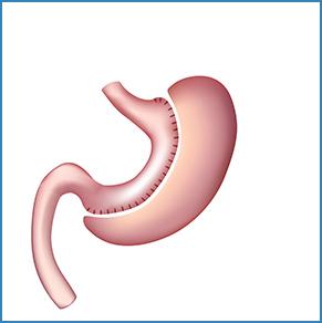 Tüp Mide Ameliyatı ( Sleeve Gastrektomi)